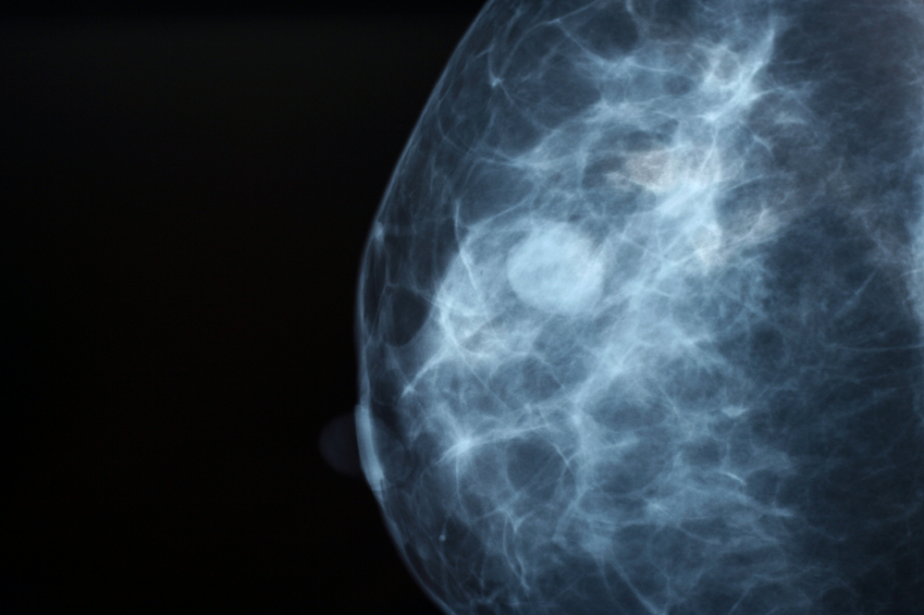 3-D Mammography Increase Cancer Detection Rates