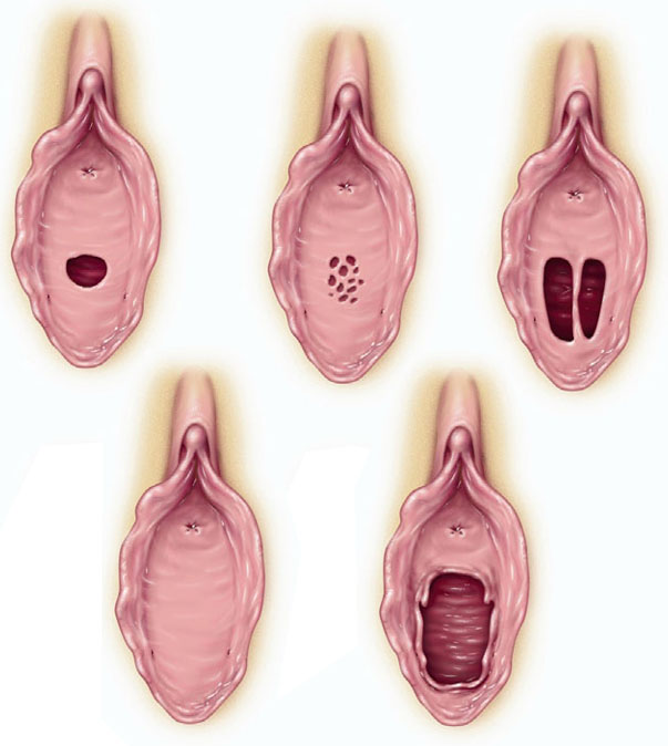 The Hymen: A Membrane Widely Misunderstood