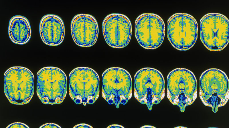 What If Sharing Your MRI Was As Simple As Pinterest?