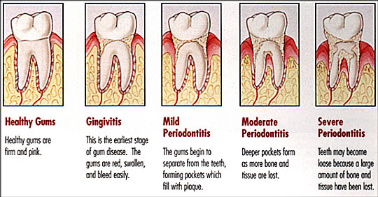 sstages periodontitis