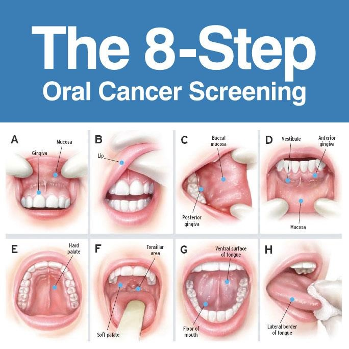 8-step-orgal-cancer-screening